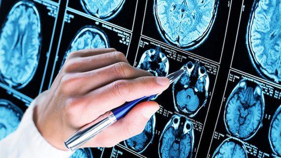 Investigadores de la US bloquean una proteína fundamental en el desarrollo del Alzheimer