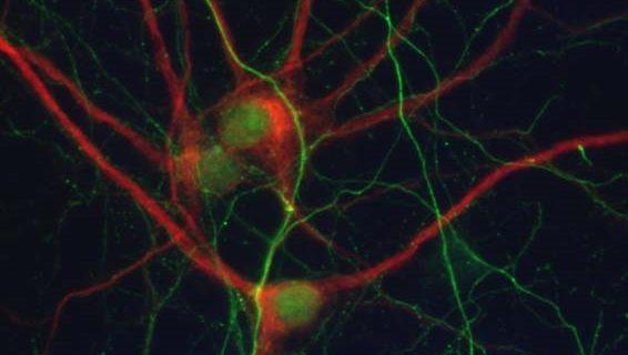 Un estudio de la UPO abre nuevas perspectivas en el diseño de terapias y fármacos para combatir el alzhéimer