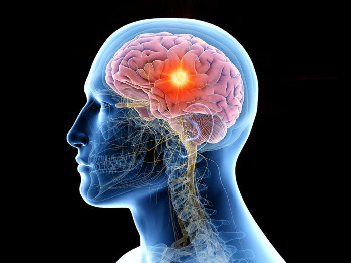 La US estudia cómo controlar el deterioro neurológico de personas con tumores que evolucionan en metástasis cerebrales.
