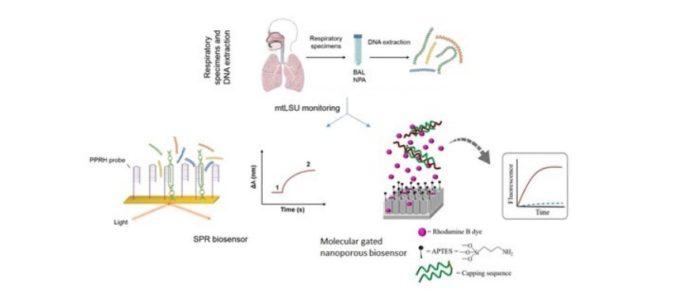 El IBiS desarrolla biosensores para detectar un hongo responsable de neumonía por Pneumocystis